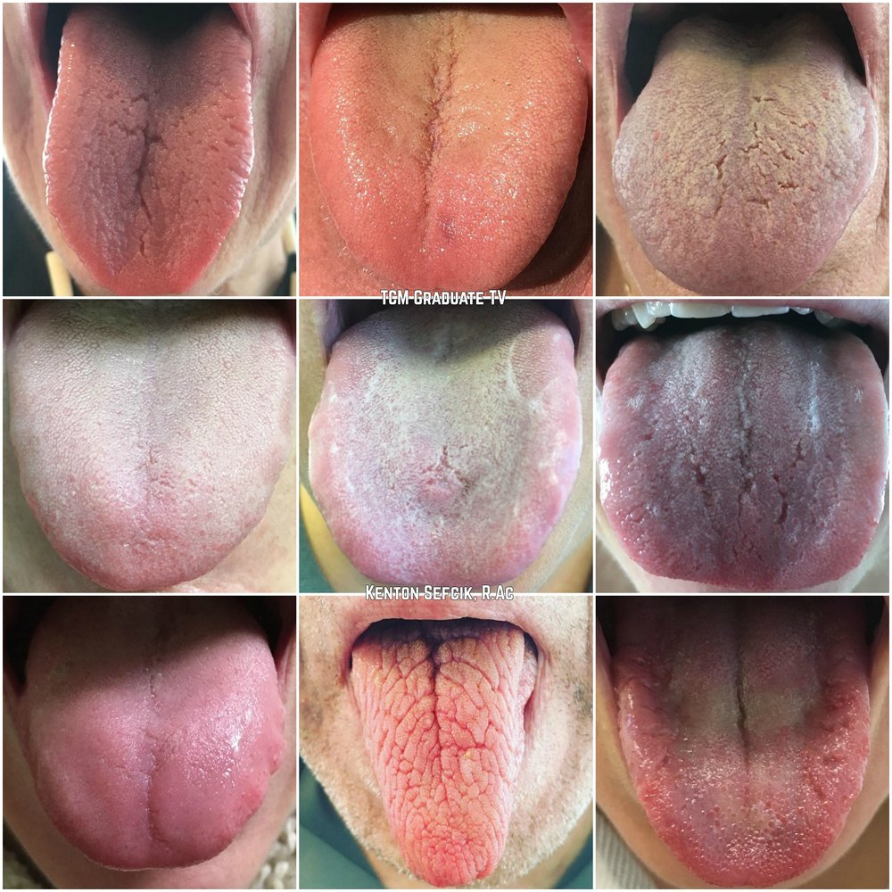 Tongue Collage.jpg