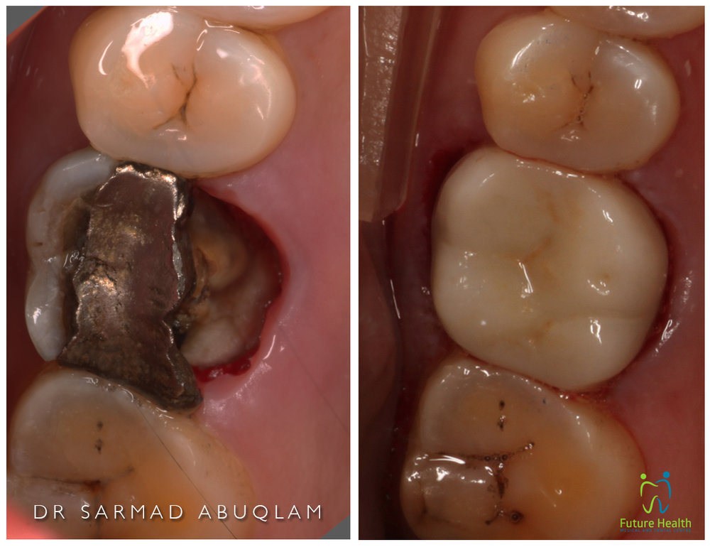 Immediately after cementation of Zirconia ceramic Crown to restore function after fracture due to large Amalgam filling. Courtesy of image to Dr Sarmad Abuqlam DDS (Melb) BBiomed (Monash)