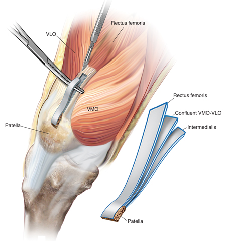 acl rehab melbourne