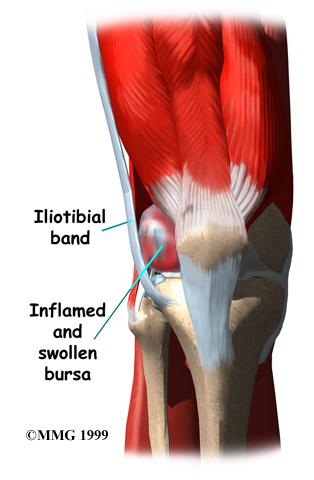 pain under knee cap