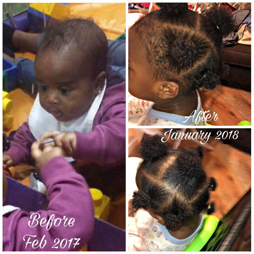 """Neste tópico vou explicar-vos um pouco da minha rotina de cuidar dos cabelos da minha filha Cataleya;      - Quando a minha filha nasceu, ela tinha bastante cabelo, cabelos lisos. Quando completou os seus 3 meses percebi que o seu cabelo começou a cair, mesmo não usando nenhum produto forte. Eu não percebia o porque da queda drástica , então resolvi marcar uma consulta com o médico porque realmente estava muito preocupada. Eu sabia que o cabelo dos bebês caía, mas não tinha idéia de que poderia cair do jeito que caiu. Com tudo o médico havia nos informado que era normal o cabelo dos bebés cair assim bastante nessa fase. Aos seus 5 meses, completamente careca comecei uma rotina restrita para o crescimento do cabelo dela. Consegui um produto para cabelos finos que funcionava nos cabelos, após algumas semanas o cabelo dela começou a florescer e a ficar grosso e cheio. Com tudo cheguei a conclusão que é realmente importante ter uma rotina para os cabelos e segui-la.     Com certeza você também se seguir rotina verá uma grande diferença.A rotina semanal do cabelo de Cataleya:      1 - Use o """"As I Am born curly avocado Shea Cowash"""" para lavar os cabelos;    2 - Condicione os cabelos com o """"Mane choice fresh lemon fruit medley kids conditioner"""". Desembaraçar o cabelo com os dedos;    3 - Seque os cabelos com um pano de algodão. (Nunca uma toalha);    4 - Enquanto o cabelo se encontra húmido, aplicar uma pequena quantidade de """"As I Am born curly leave in conditioner"""";    5 - Seguido de """"As I Am born Curly twist defining smoothie"""";    6- Por fim aplicar um óleo para selar toda a humidade. Eu uso azeite de Oliveira.É importante encontrar um produto que funcione para os cabelos do seu filho(lha). Nem todos os produtos funcionam bem em todos os tipos de cabelo.   Love,   Yocana Talaia"""