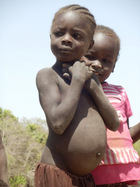 Malnutrition is a big problem in the Nuba Mountains.