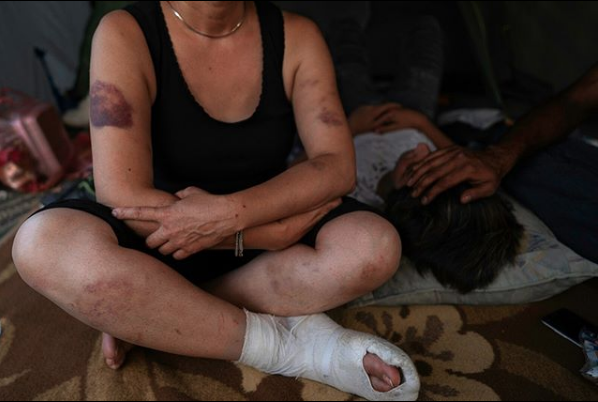 Eram, 47 years old woman from Iran and his 14 year old son were alledgedly beaten up by the Croatian police while trying to reach Slovenia. Via    No Name Kitchen