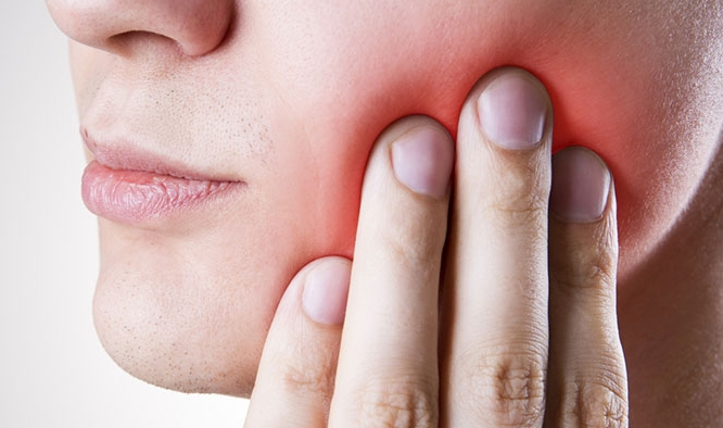 wisdon teeth removal geelong.jpg