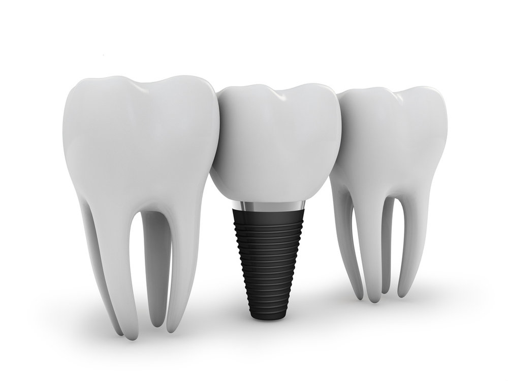 dental implants geelong dentist.jpg