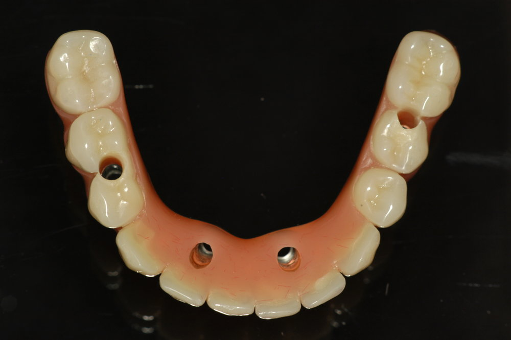 LOWER IMPLANT APPLIANCE