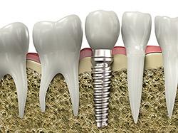 implant-model.jpg