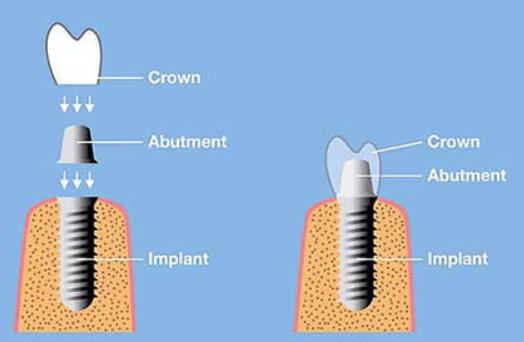 crown_diagram.png