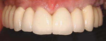 implantsmall-after.jpg