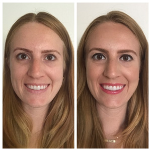 Before and after 30-40 years of age