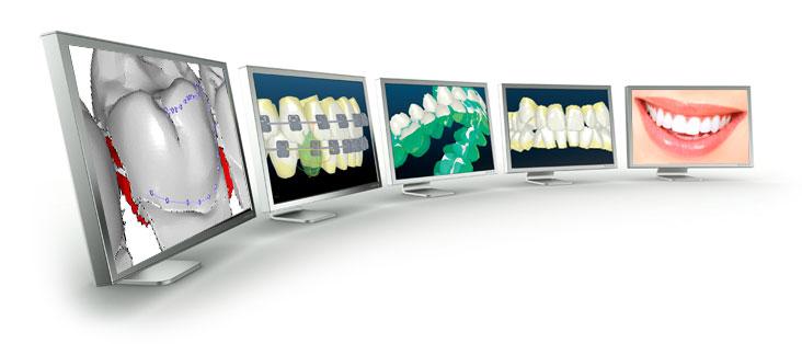 orthodontic-technology.jpg