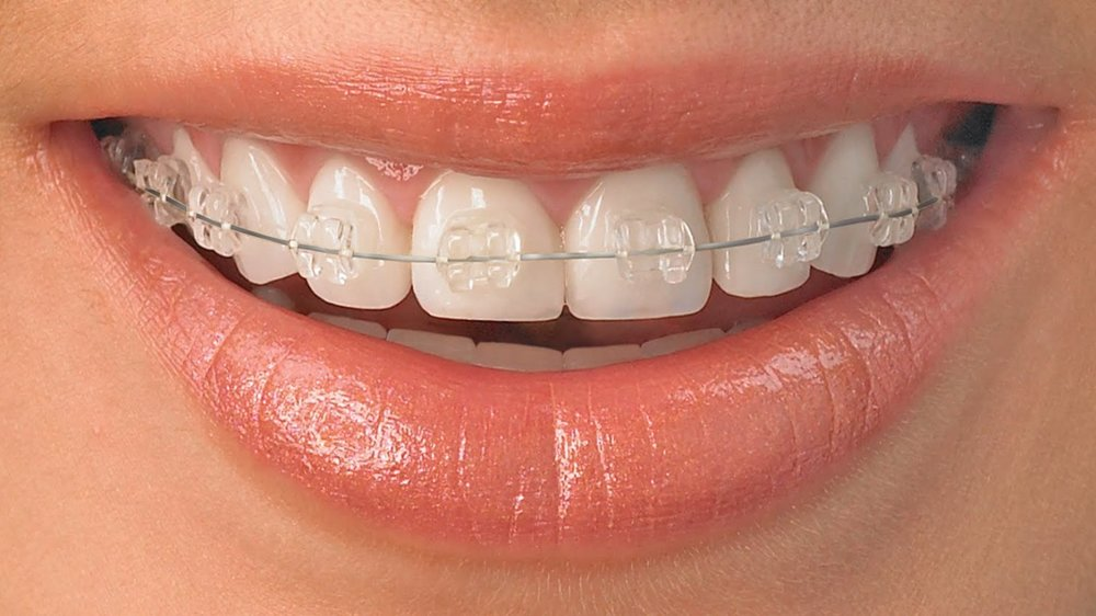 clear-orthodontic-braces-1366x768.jpg