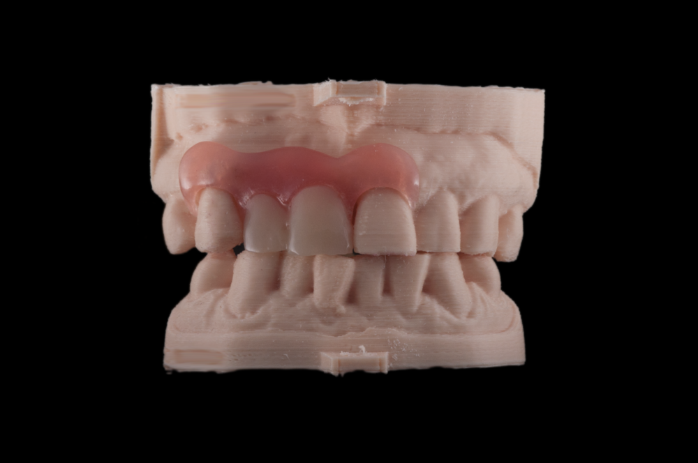A 3D printed Valplast partial denture with custom designed and milled teeth to mirror the natural anteriors.