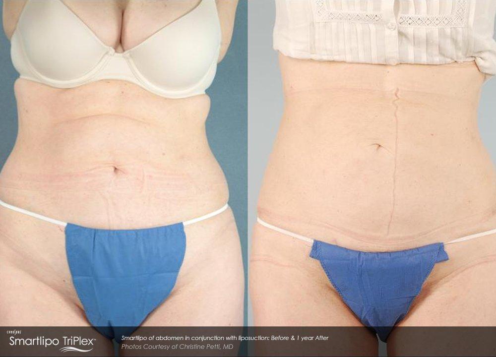 DiBernardo_Smartlipo-of-abdomen-in-conjunction-with-liposuction-1-year-post.jpg