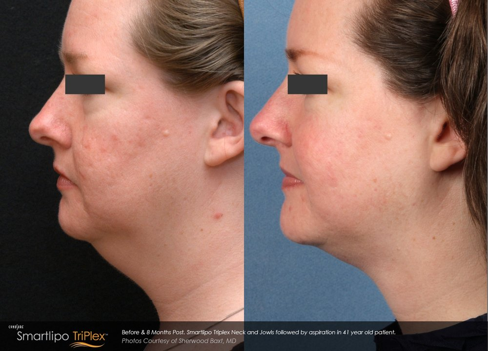 Baxt_Smartlipo-TriPlex-of-the-neck-and-jowls-followed-by-aspiration-on-41-year-old_Before-and-8-months-post.jpg
