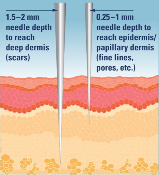 Adjusting the needle depth can target different skin layers