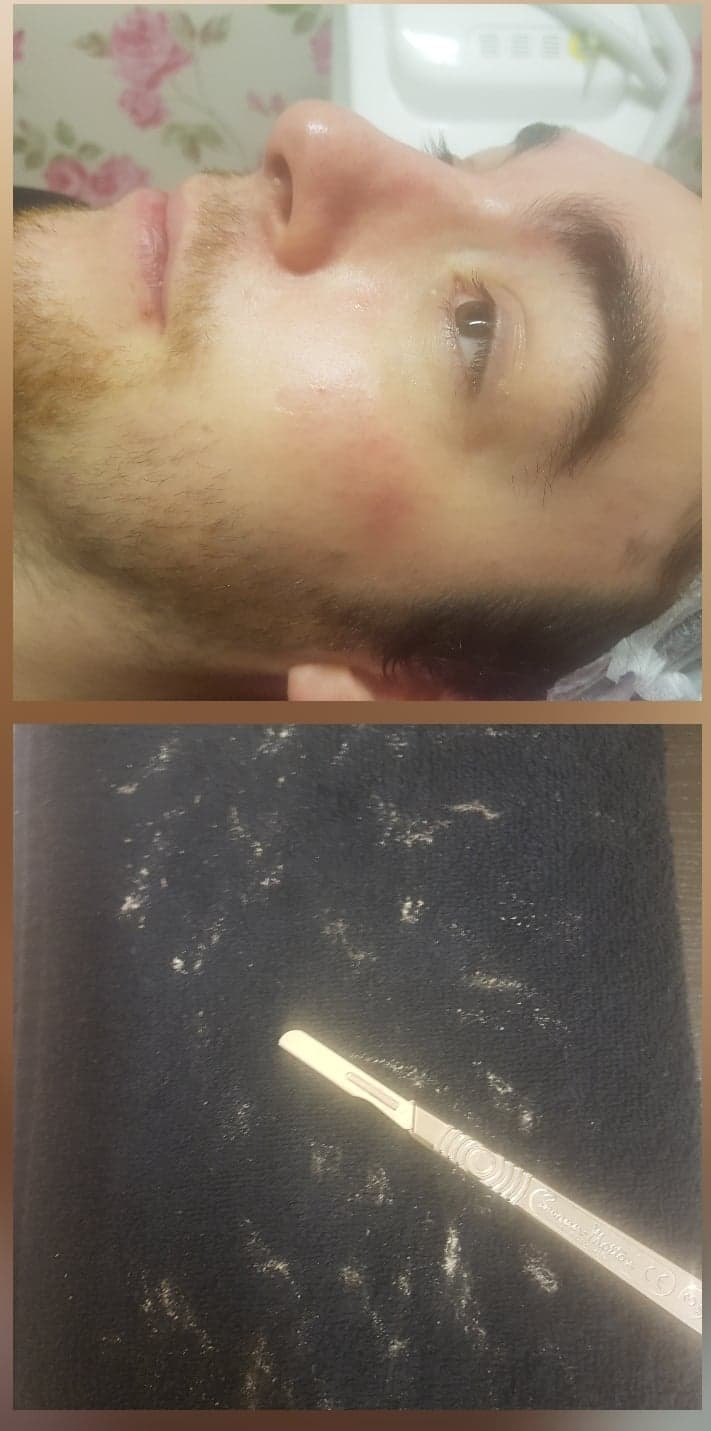 Dermaplaning results - Removes facial hair that is light and fluffy
