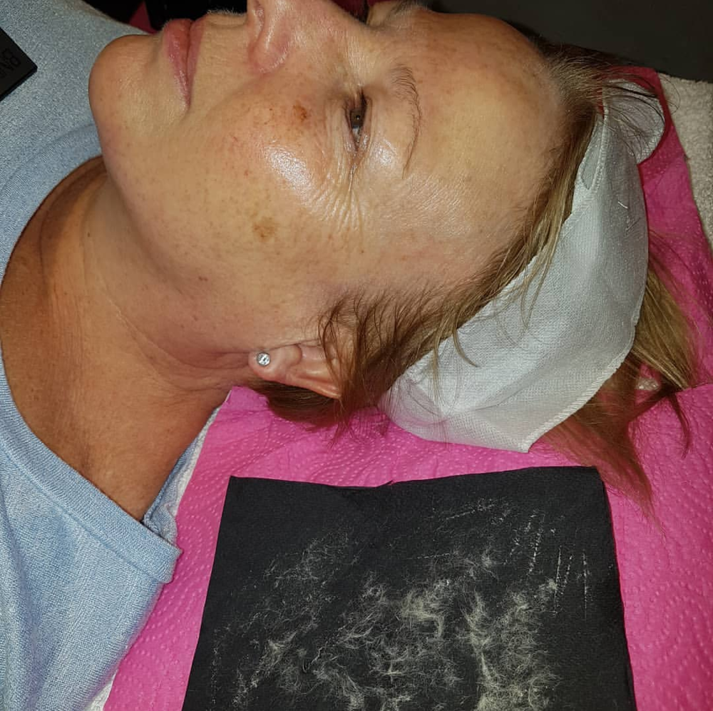 Dermaplaning Results - Uses a scalpel and light touch to remove fluffy blonde facial hair
