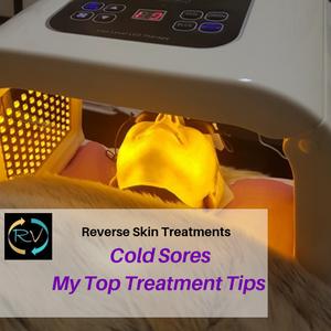 cold sore -treatments
