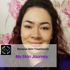 skincare-skin-acne prone