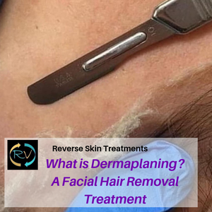 what is dermaplaning-hair removal-facial