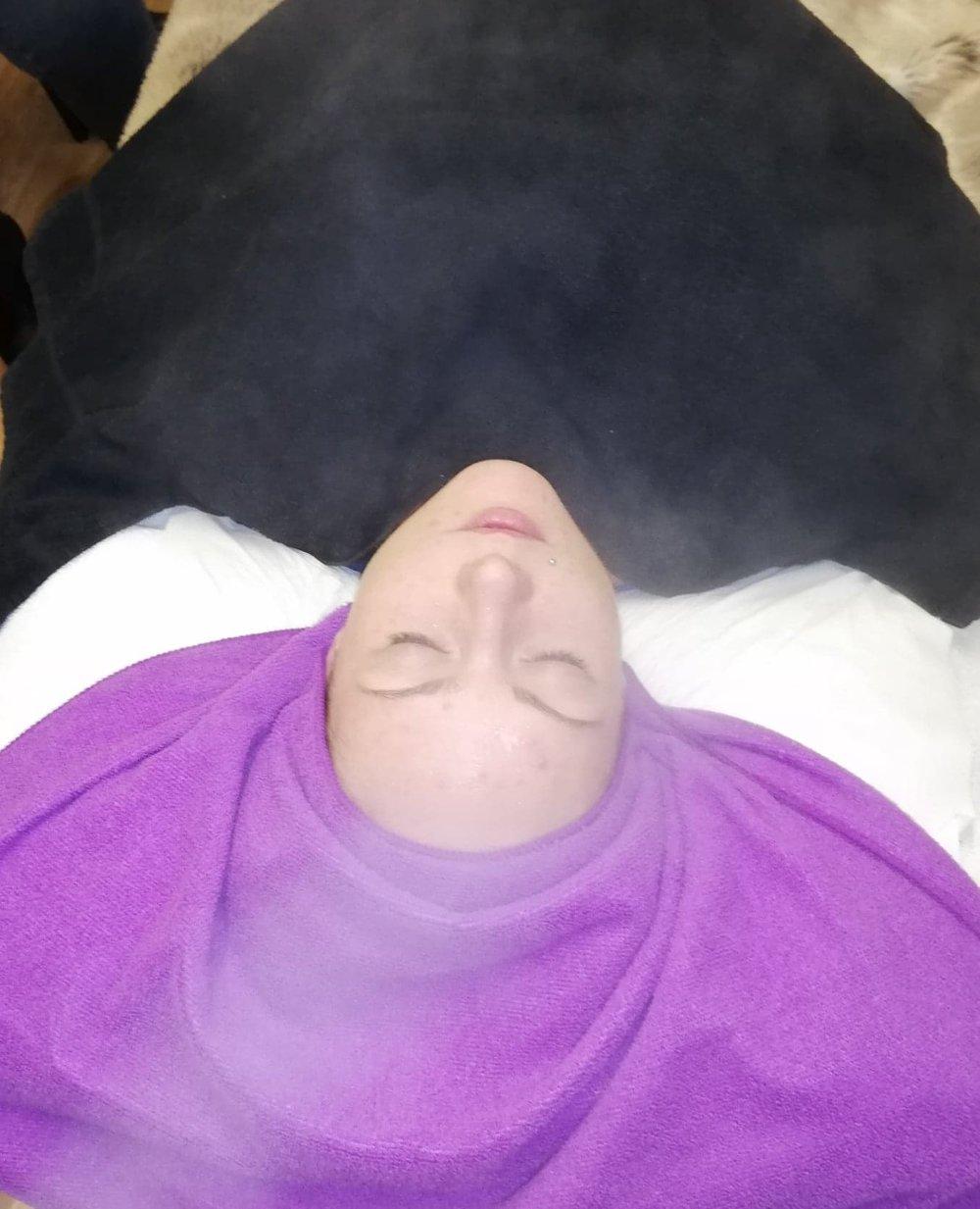 #13 -Reverse Skin Treatments - Miss D's, Montrose & Blondies, Forfar07922024518