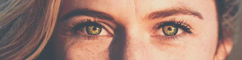 4x1 freckles.jpg