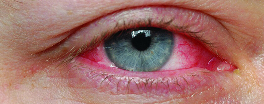 Pink_eye_close_HEADER_rackcdn.com_.jpg