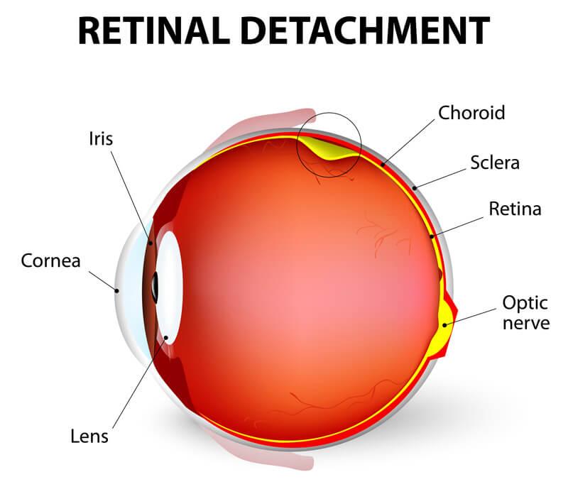 portland-optometrist