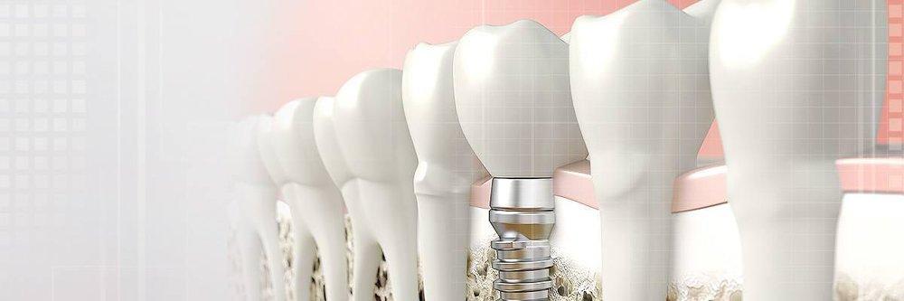 periodontics-header.jpg
