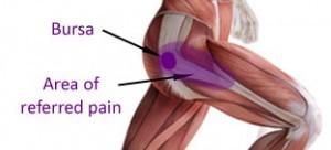 trochanteric-hip-bursitis-300x1362-300x136.jpg