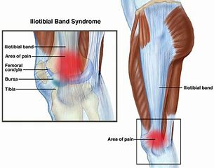 iliotibial band friction syndrome.png