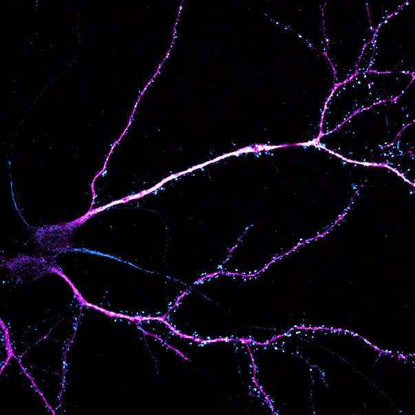 Mouse hippocampal neurons, 21 DIV