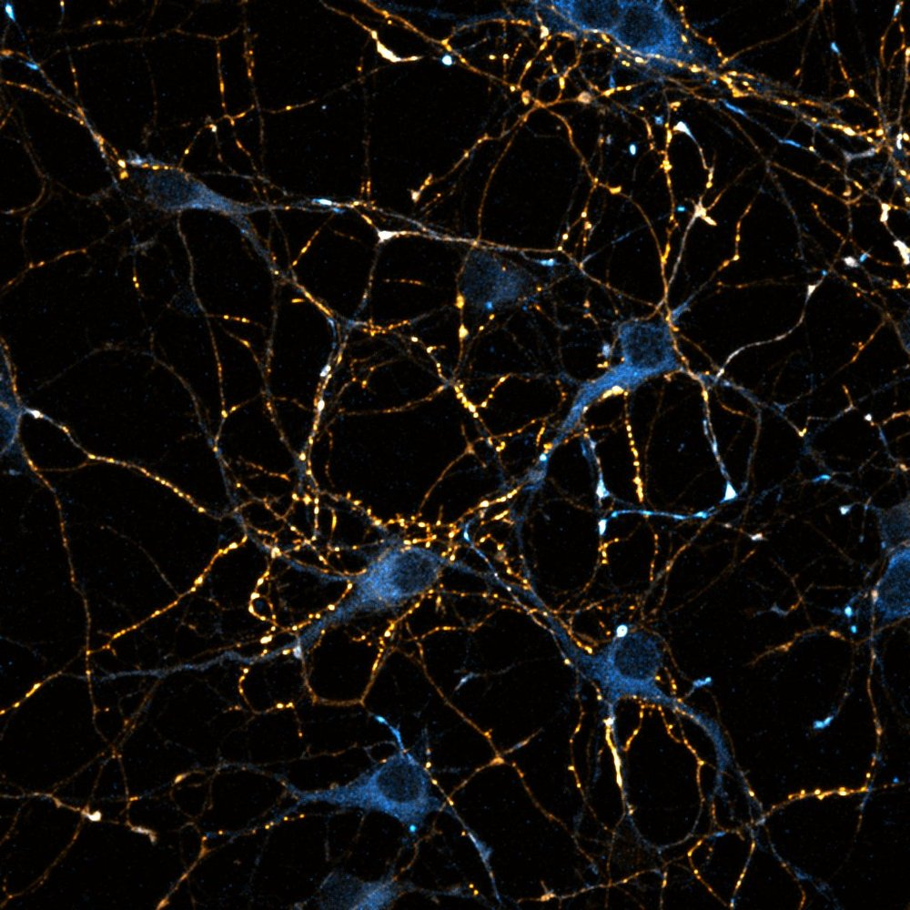 Mouse hippocampal neurons, 8 DIV