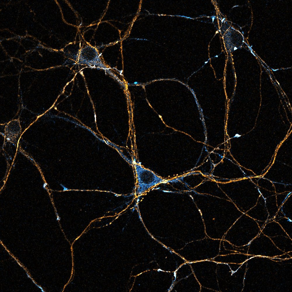 Dynein-GFP (cyan) accumulating in the distal axons labelled with for tau (orange).