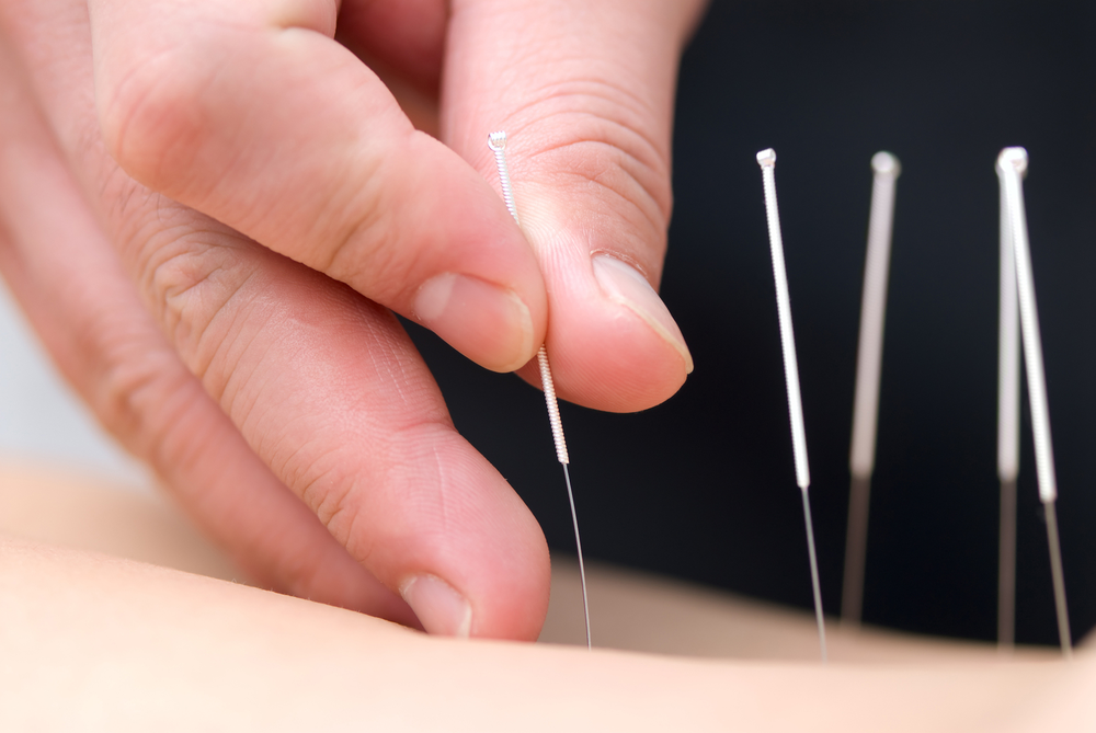 bigstock-acupuncture-12557702 copy.png