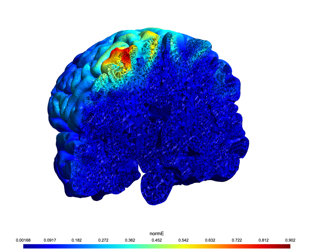 Modeled disturbance induced by TMS