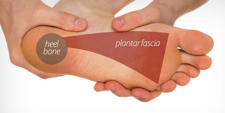 plantar-fascia.jpg