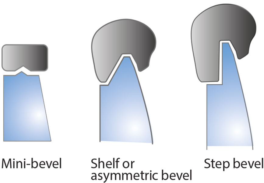 Special Bevel Types