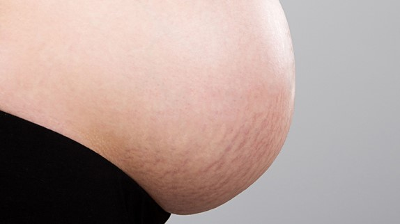 Stretch-Marks-During-Pregnancy-722x406.jpg