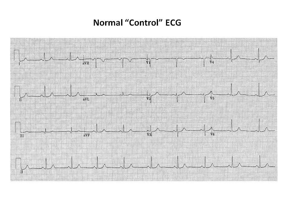 Upside Down ECG Figure 1.jpg