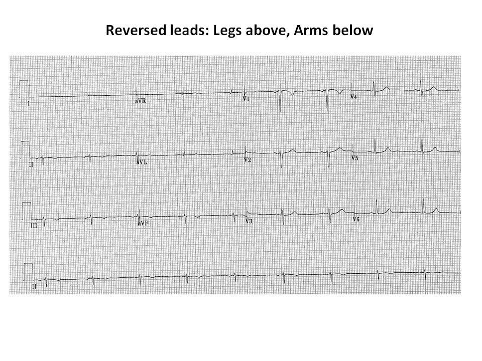 Upside down ECG Figure 2.jpg