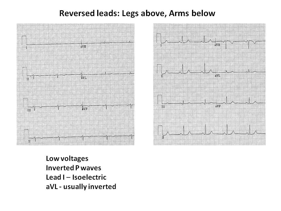Upside  Down ECG Figure 3.jpg