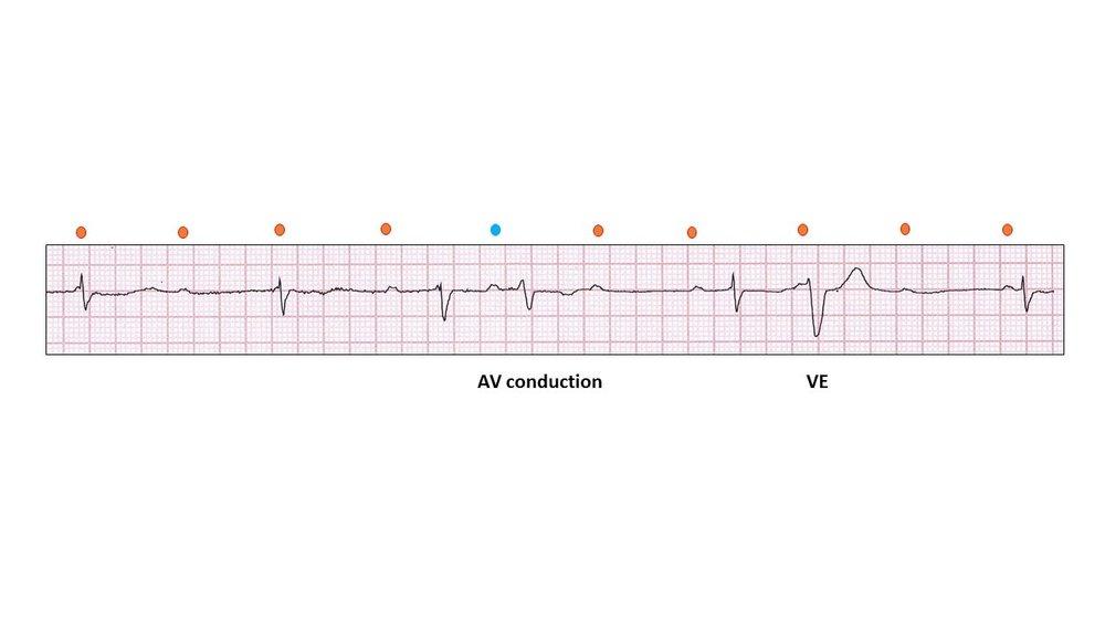 Complete Heart Block 1.jpg