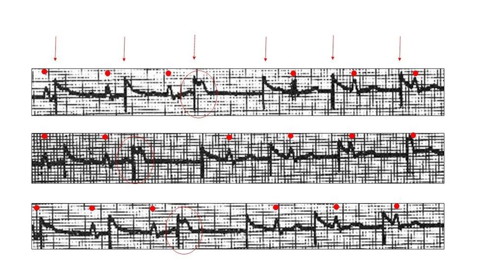 complete heart block 4.jpg