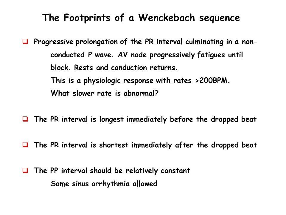 footprints of wenckebach sequence.jpg