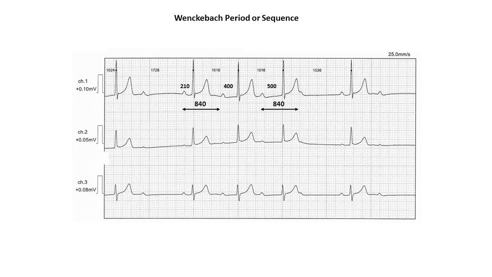 wenckeback sequence.jpg