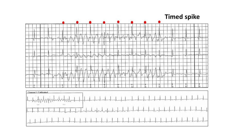 Image 8: The timed spikes are the sinus QRS waves. Three channels are required to exclude a ventricular tachyarrhythmia.