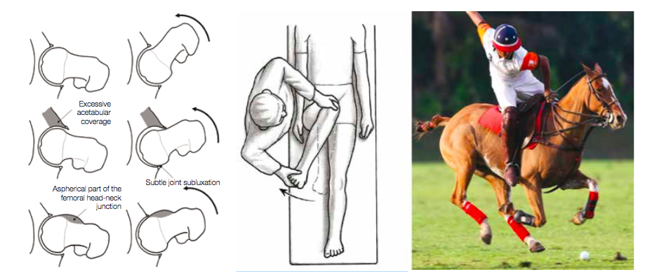 Groin pain commonly has its origins in the hip joints