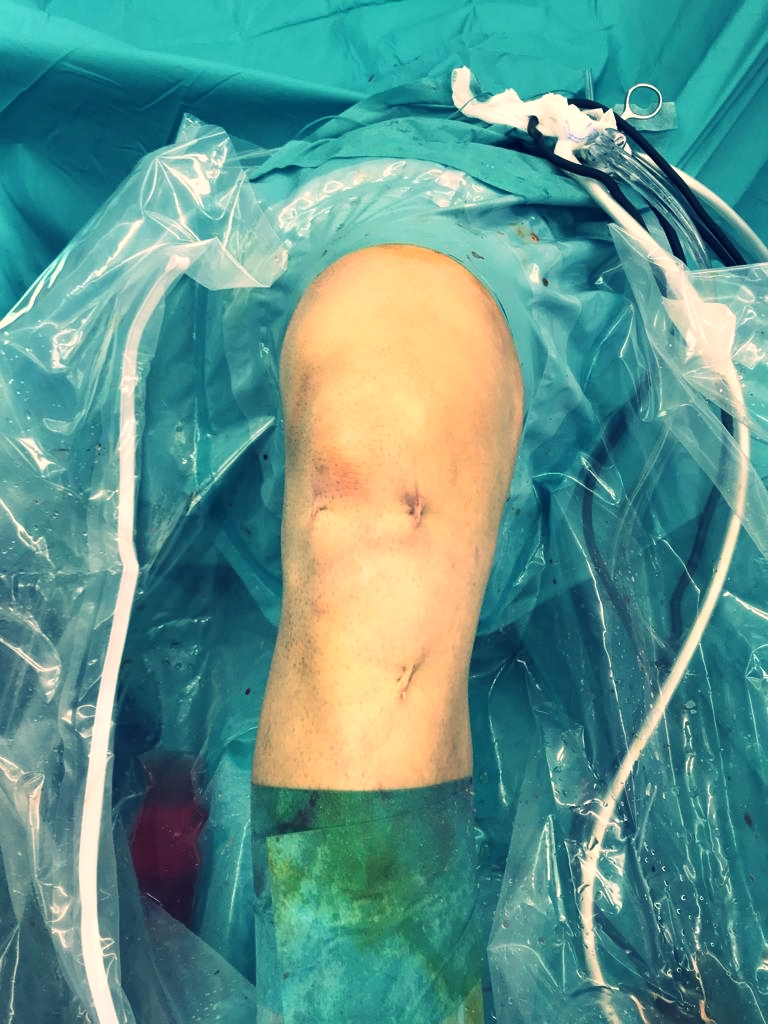 Minimal Invasive ACL-Surgery done - Next step: Pain reduction - by Dr. Andreas Krüger (Zurich)